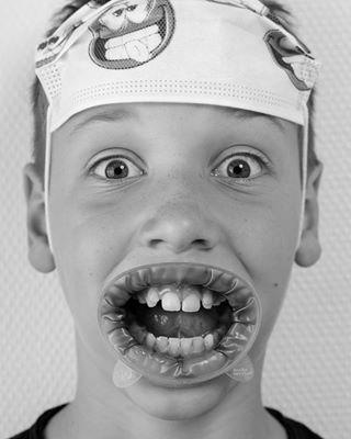 blackandwhitephoto project cameranu_nl littlepatient camera funny photoshoot getthefearoutofthechild photoshop fotovakschoolrotterdam dentist