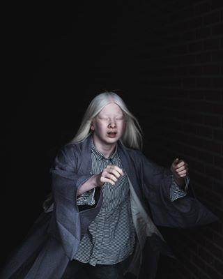 zoomnl instagram fujifilm albinism photography